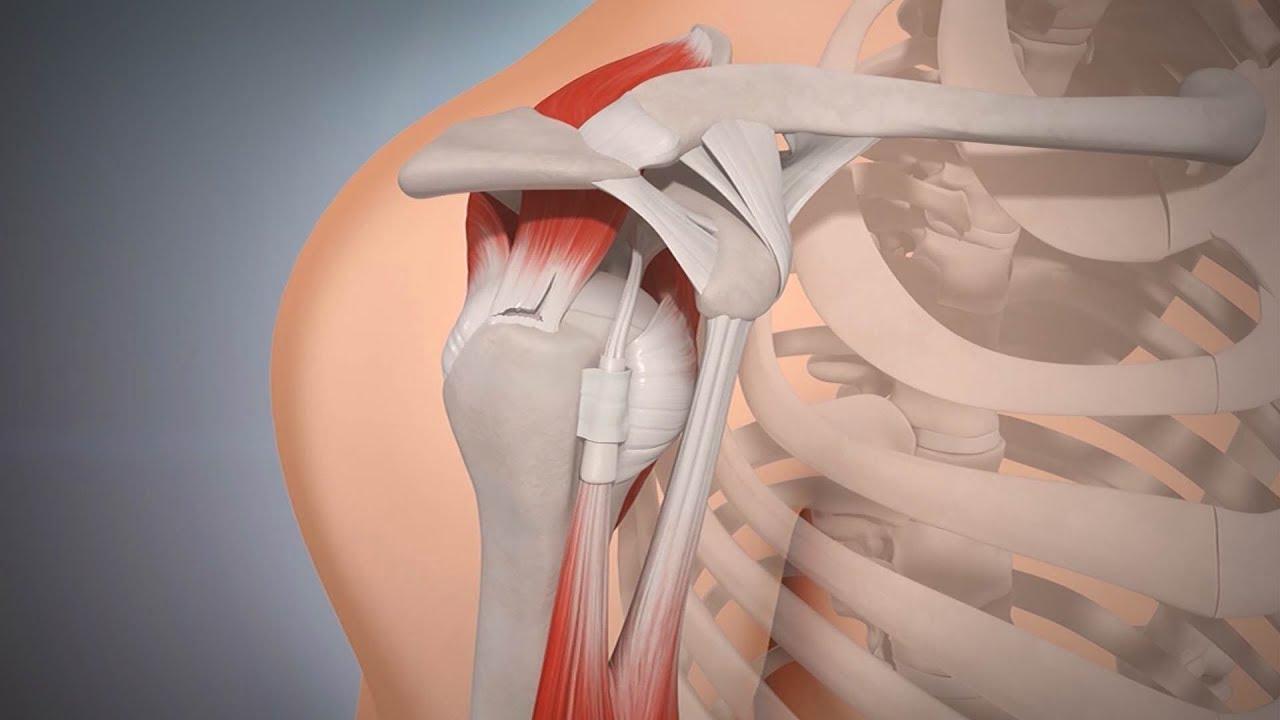 Verletzte Schulter - YouTube