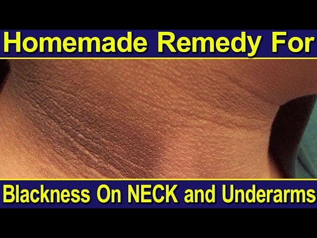 Telugu Fashion Tips & Tricks | How to clean your neck to avoid blackness