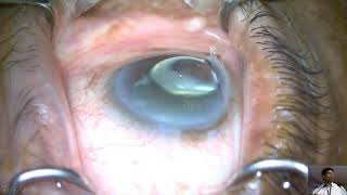 Hydrus Shunts – Are Bigger Ones Better thumbnail