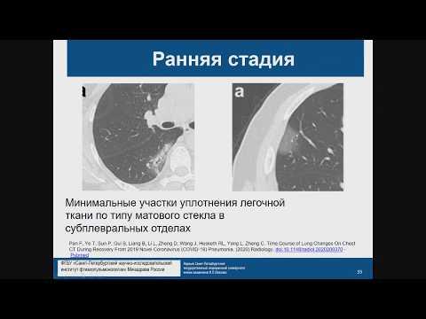 КТ диагностика поражения легких при COVID 19 Лукина О.В.