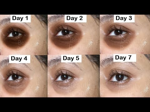 Remove DARK CIRCLES In 7 Days, Under Eye WRINKLES, Eye Bags, Anti Aging Eye Mask, Cucumber Eye Gel