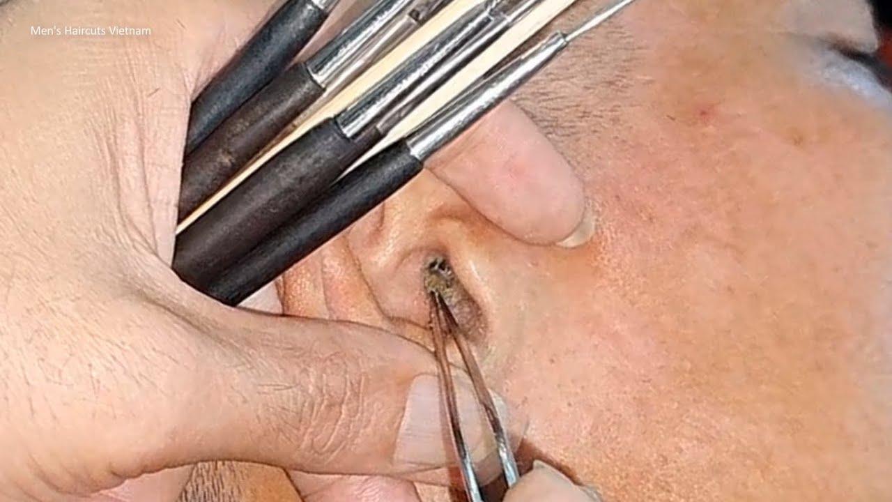 Telinga kotor || Cara membersihkan kotoran telinga yang kering