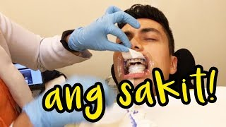 I Tried Professional Teeth Whitening (100% Effective)