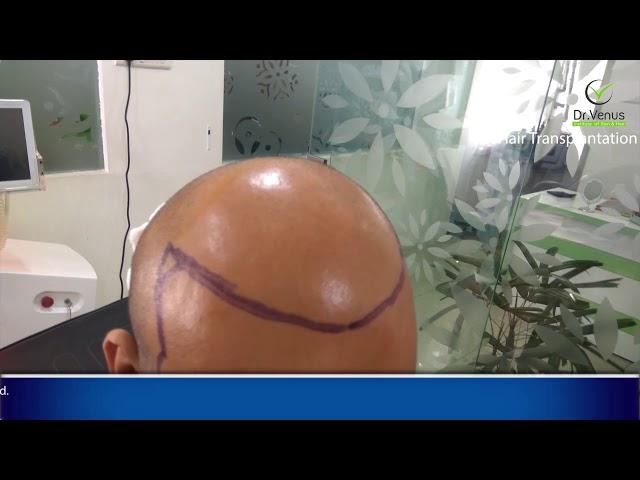 Best Hair Transplant in Hyderabad [At affordable Price| Complete Procedure]