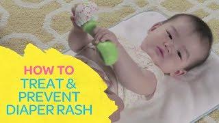 How To Treat & Prevent Diaper Rash
