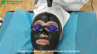 Training Video der Caŗbon Peeling Behandlung
