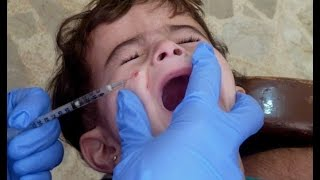 انتشار اللشمانيا بين النازحين السوريين من مناطق داعش إلى لبنان