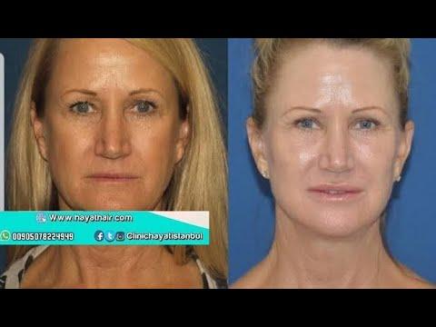 عملية شد الوجه  بالجراحة التجميلية في تركيا |مستشفى الحياة 00905078224949
