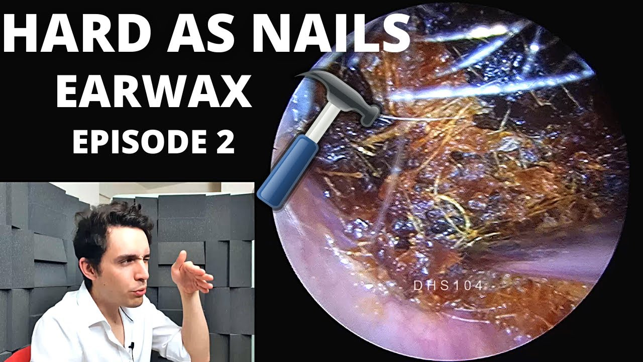 Hard As Nails Ear Wax EPISODE 2