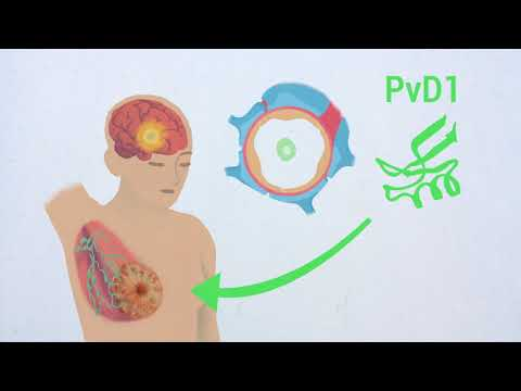 Challenging metastatic breast cancer with the natural defensin PvD1