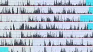 Philips Respironics Actiwatch Clinical Scenario Video