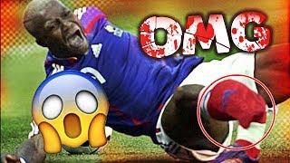 הפציעות הכי כואבות בכדורגל העולמי (מפחיד)