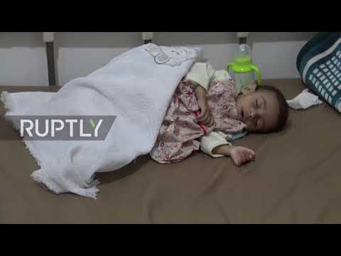 Yemen: Cholera outbreak now 'worst in history'