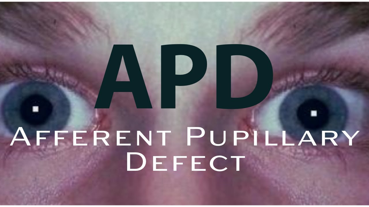 Download How to detect an APD:  Afferent Pupillary Defect