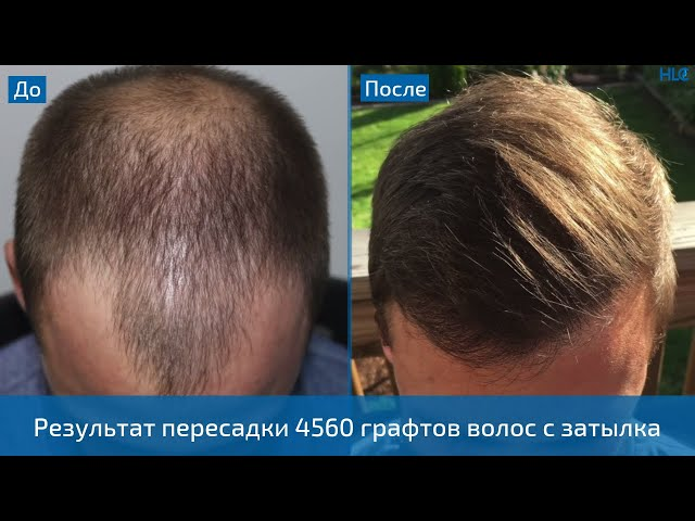 Невероятный результат пересадки волос! Результат трансплантации 4560 графтов на голову!