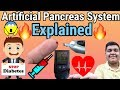 Artificial Pancreas System Explained in Detail [HINDI]
