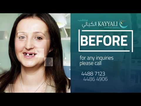 Dental Implant Before & After