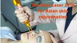 Best Laser for Asian Skin Rejuvenation