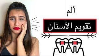 تقويم الاسنان | طرق لتخفيف ألم تقويم الاسنان 😁