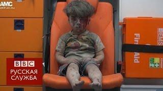 Видео с раненым мальчиком из Алеппо потрясло мир(Сирийские активисты опубликовали шокирующие фотографии маленького мальчика, спасенного из уничтоженного..., 2016-08-18T10:39:29.000Z)
