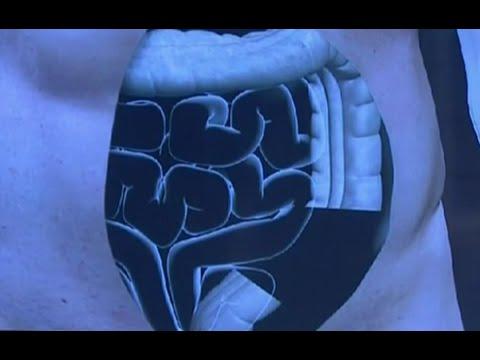 Лечение рака толстой кишки