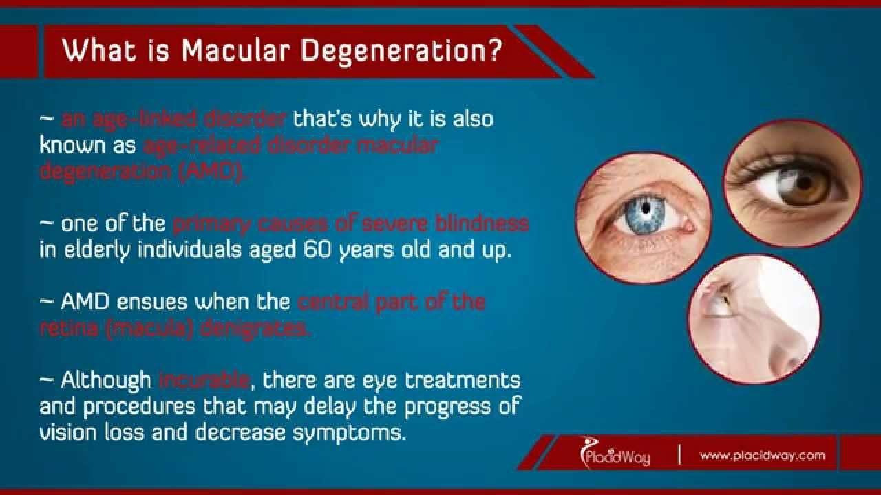 Best Natural Cure For Macular Degeneration