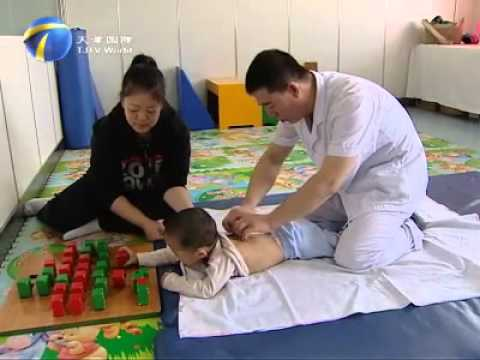 Acupuncture treatment for CP children - YouTube - ma cerebral palsy