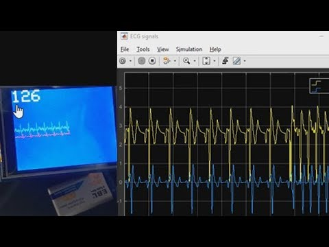 How to Build a Heart Rate Detector Using Arduino and MATLAB