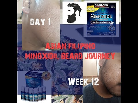 Asian/Filipino Minoxidil Beard Journey – Gains from Day 1 to Week 12