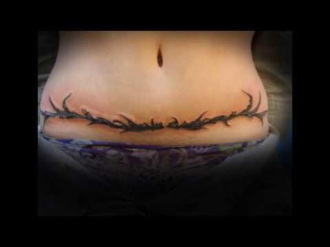 Tatuajes Para Tapar Cicatriz De Cesarea Youtube