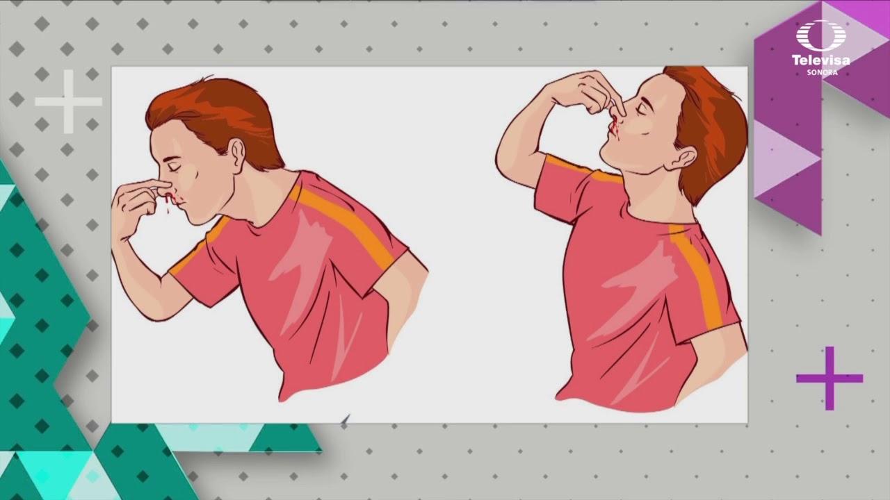 Que hacer ante sangrado de nariz