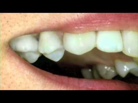 Dr Baird Healthy Teeth Tip #2   Bairddds.com Dentist Draper 84020 Sandy Utah Healthgrades