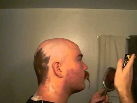 Partial Head Shave With HeadBlade ATX 24 Days Growth