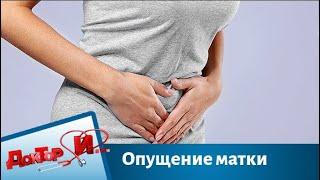 Опущение матки причины симптомы лечение  Доктор И