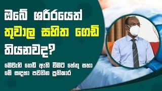 ඔබේ ශරීරයෙත් තුවාල සහිත ගෙඩි තියනවද? | Piyum Vila | 13 - 10 - 2021 | SiyathaTV Thumbnail
