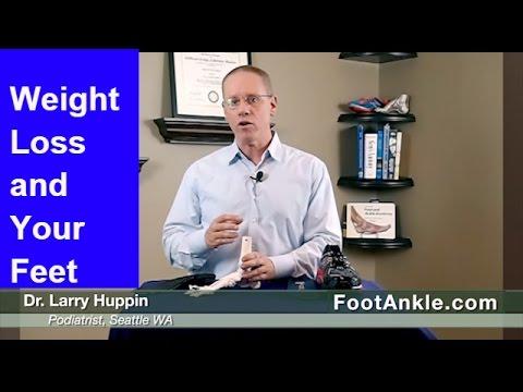 weight-loss-and-feet-|-seattle-podiatrist-larry-huppin