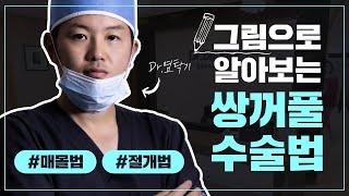 광주성형외과 쌍꺼풀수술 방법 - 상무지구 닥터뷰티의원