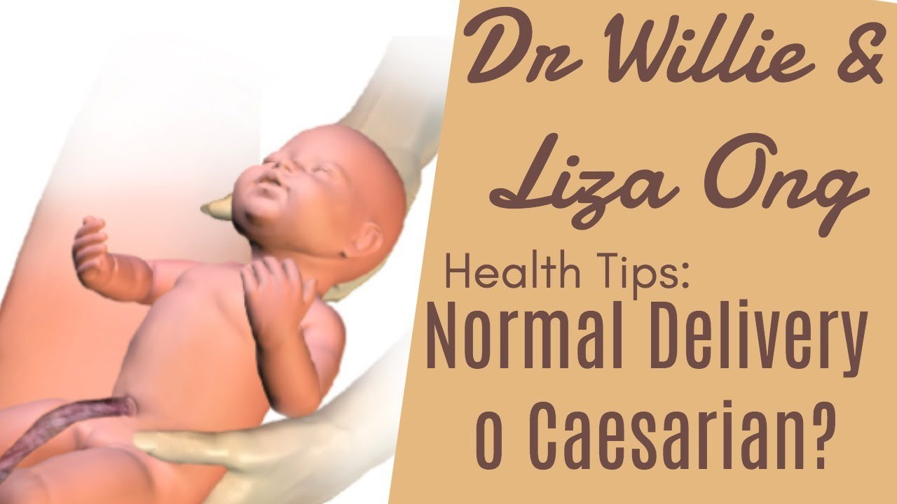 For pregnant women: How to know if you are Normal delivery or Caesarian by  Doc Catherine Howard