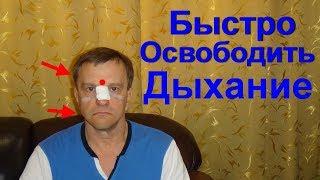 видео Заложенность носа