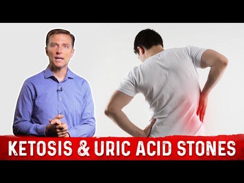 Ketosis and Uric Acid Stones