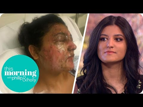 The Aspiring Model Scarred for Life in an Unprovoked Acid Attack | This Morning
