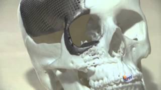Unicamp e Biofabris fazem 1ª cirurgia de crânio com titânio impresso em 3D do Brasil