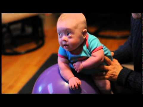 Baby With Down Syndrome In Occupational Therapy Youtube