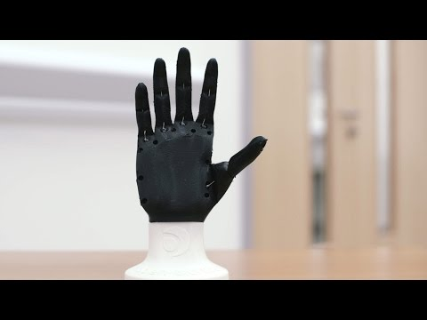 Open Bionics: 3D printed prosthetic limbs - Ultimaker: 3D Printing Story