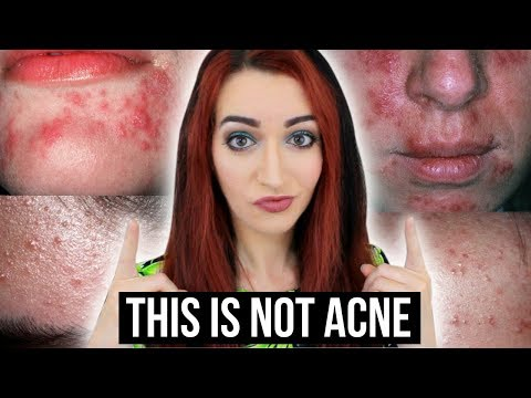 5 Things You THINK Are Acne - BUT ARE NOT! || Jess Bunty