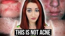 hqdefault - Allergic Dermatitis Unknown Acne