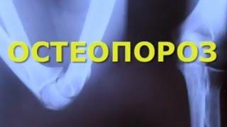 Пять важных фактов об остеопорозе
