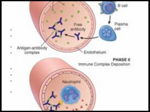 Systemic Lupus Erythrematosus (SLE)