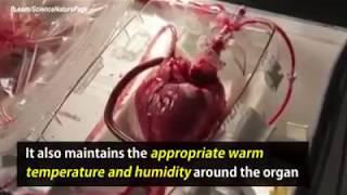 heart transportation