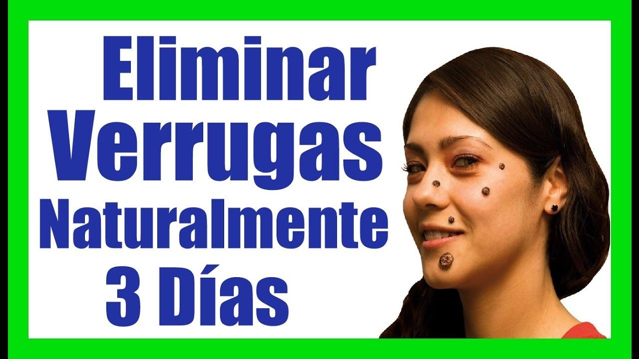 Medicamento para quitar las verrugas eliminar verrugas de manera natural remedios caseros youtube - Como quitar las humedades de la pared ...